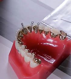 Orthodontics - Movies Archives | Page 11 of 19 | Dental